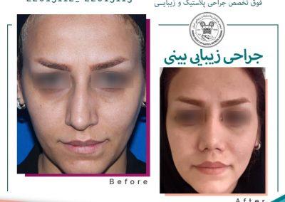 نمونه عمل بینی کج دکتر هادیلو