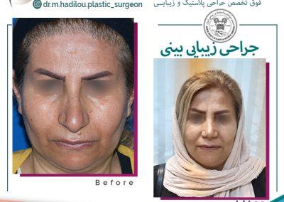 نمونه جراحی بینی با نوک گوشتی و افتاده