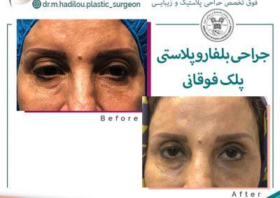 نمونه جراحی بلفاروپلاستی دکتر هادیلو