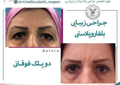 بلفاروپلاستی دو پلک توسط دکتر هادیلو