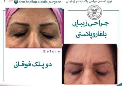 جراحی زیبایی پلک توسط فوق تخصص جراحی پلاستیک