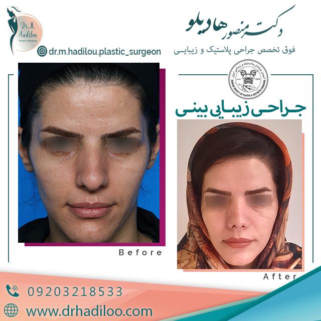 نمونه جراحی زیبایی بینی دکتر هادیلو