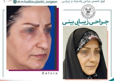 عمل بینی دکتر هادیلو در تهران