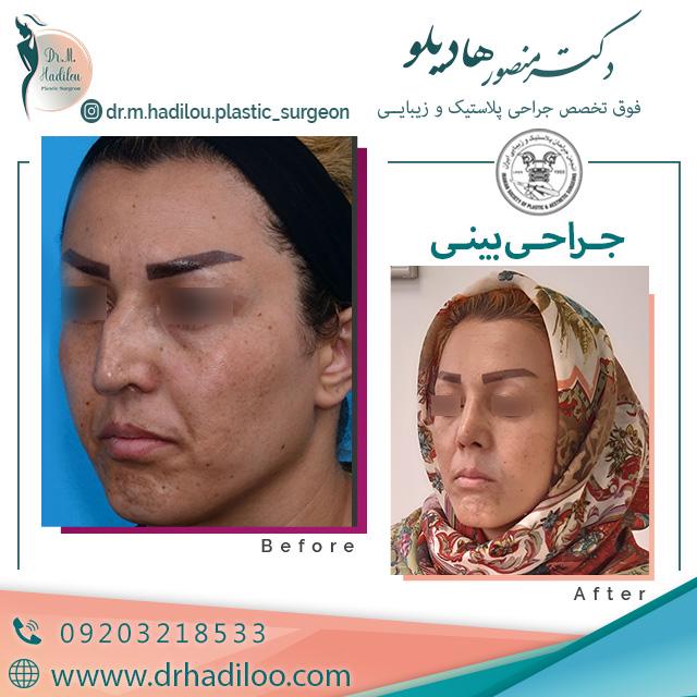 نمونه کار عمل بینی دکتر منصور هادیلو