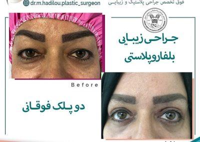 عکس نمونه کار جراحی زیبایی پلک