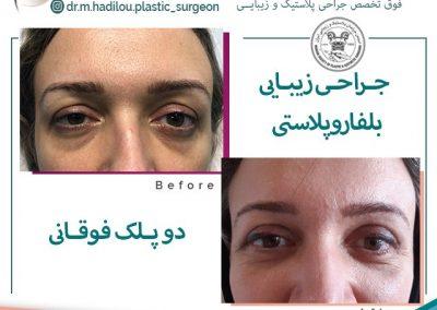 جراحی زیبایی پلک دکتر منصور هادیلو در تهران