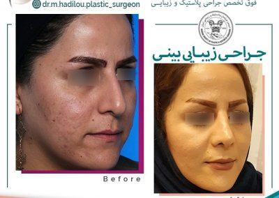 جراحی بینی عقابی توسط دکتر هادیلو