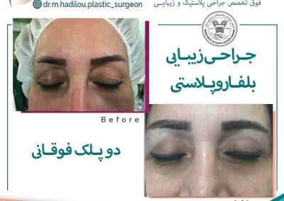 نمونه عمل پلک قبل و بعد از جراحی دکتر هادیلو