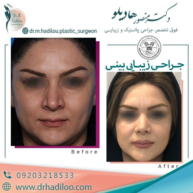 جراحی زیبایی بینی استخوانی و کج