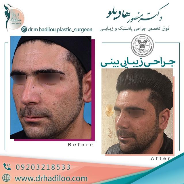 نمونه جراحی زیبایی بینی مردان