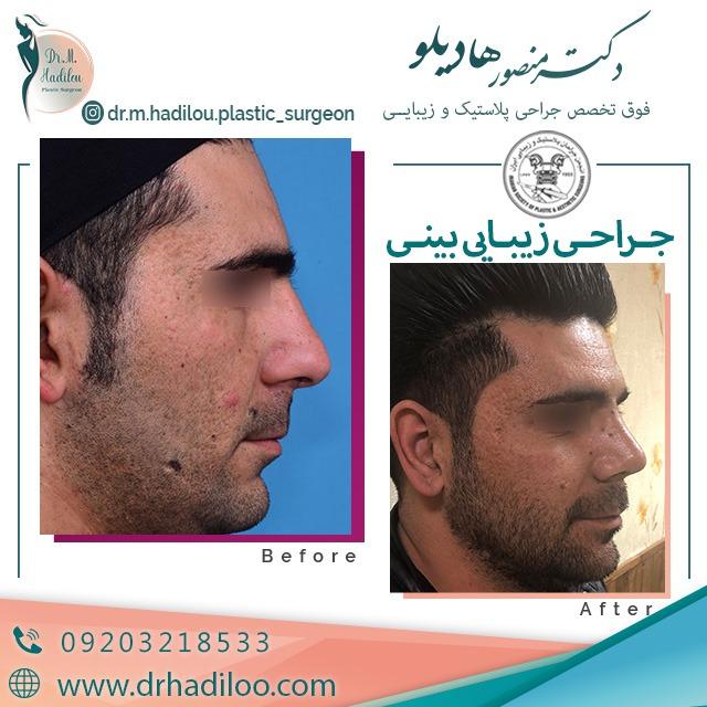 جراحی طبیعی بینی