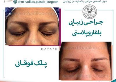 عمل زیبایی بلفاروپلاستی توسط دکتر هادیلو