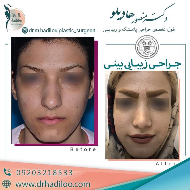 جراحی بینی گوشتی توسط دکتر هادیلو