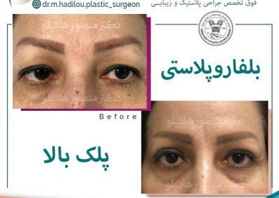 نمونه جراحی زیبایی پلک