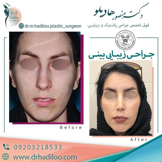 نمونه جراحی بینی استخوانی دکتر هادیلو