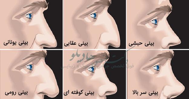مدل های مختلف بینی مردان