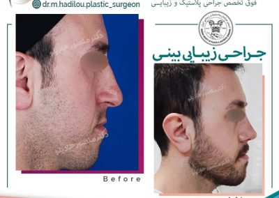 جراحی زیبایی نوک بینی آقایان دکتر هادیلو