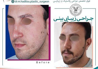رفع افتادگی نوک بینی آقایان جراحی دکتر هادیلو