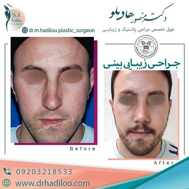 جراخی بینی مردانه توسط دکتر هادیلو