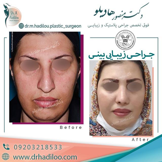 جراحی زیبایی بینی توسط بهترین جراح بینی تهران