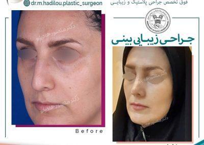 عمل زیبایی بینی توسط دکتر هادیلو