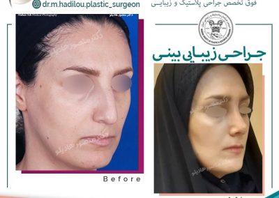 عمل زیبایی بینی دکتر هادیلو جراح پلاستیک