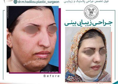 رفع قوز و افتادگی بینی توسط جراح پلاستیک در تهران