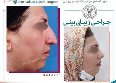 جراحی بینی عقابی در تهران