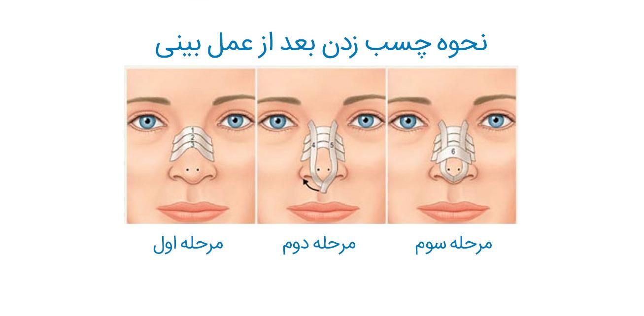چسب زدن بینی بعد عمل