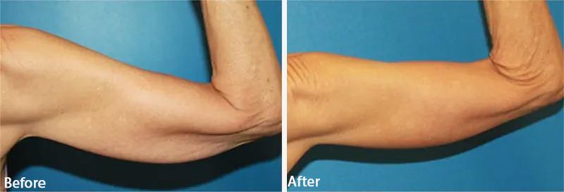 قبل و بعد از لیفت بازو