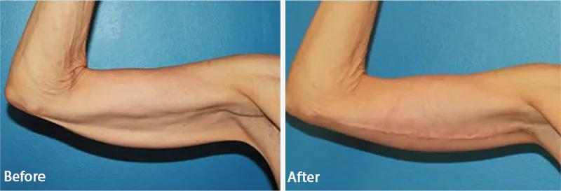 قبل و بعد از لیفتینگ بازو
