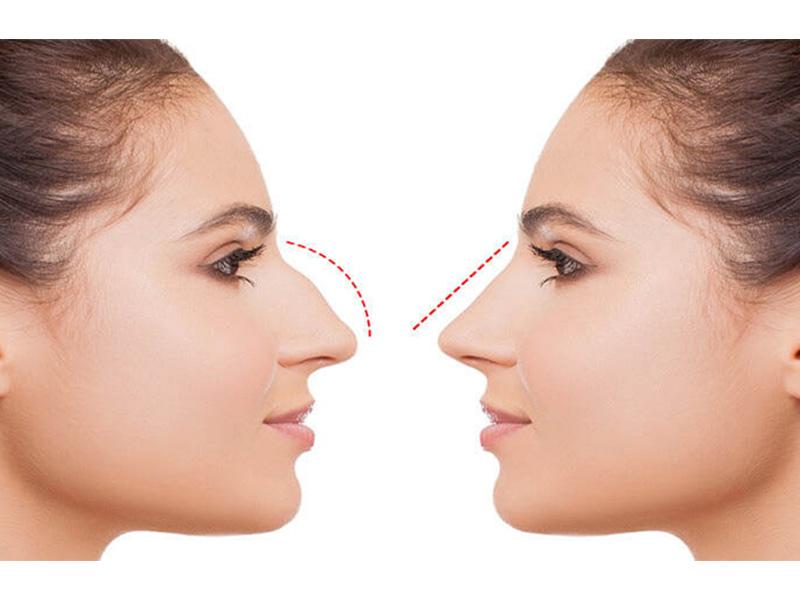 فرق بینی گوشتی با استخوانی